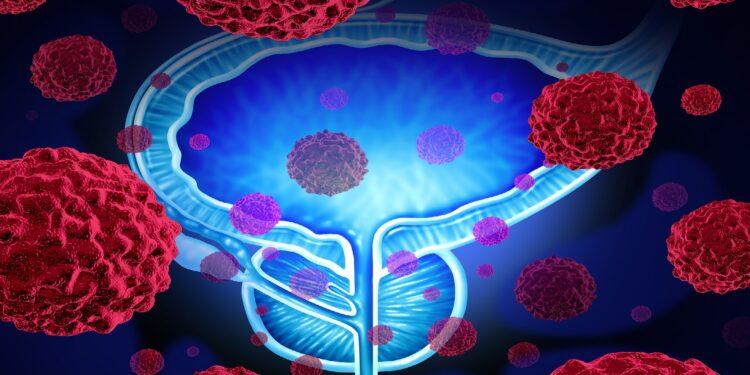 Darstellung Prostata mit Tumor und Krebszellen