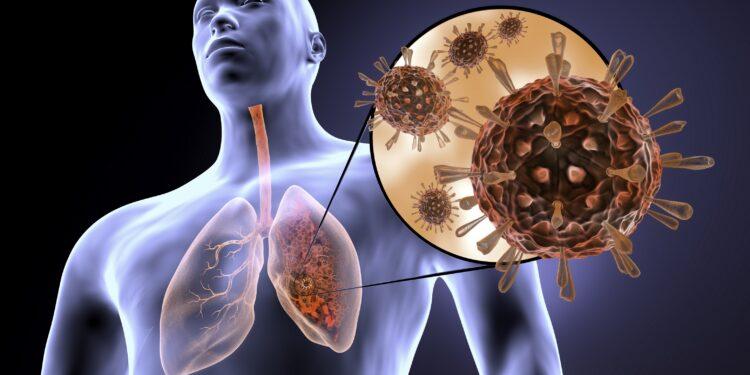 Schema di un polmone infetto dal virus Corona.