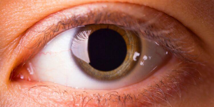 Auge mit stark geweiteter Pupille