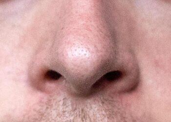 Eine männliche Nase in Nahaufnahme.