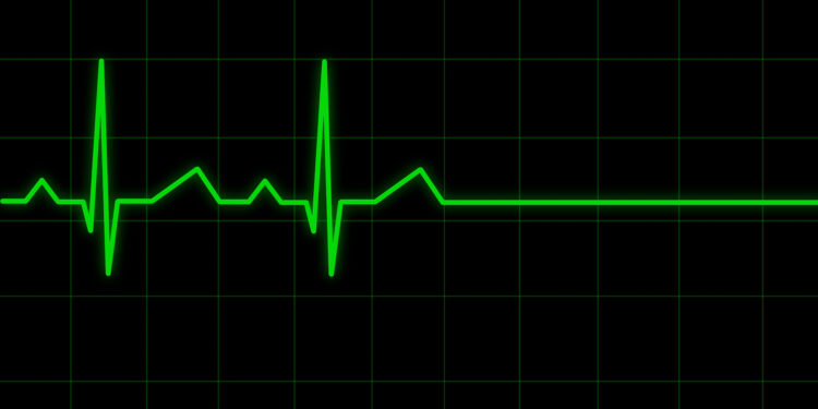 Ein Elektrokardiogramm