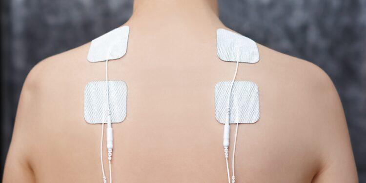 Vier weiße Elektrodenpflaster im Schulter-Nacken-Bereich