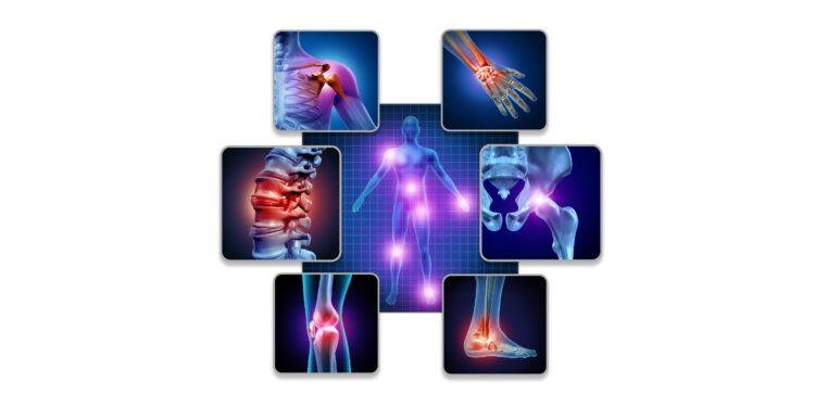 Gelenkschmerzen an verschiedenen Stellen des Körpers hervorgehoben.