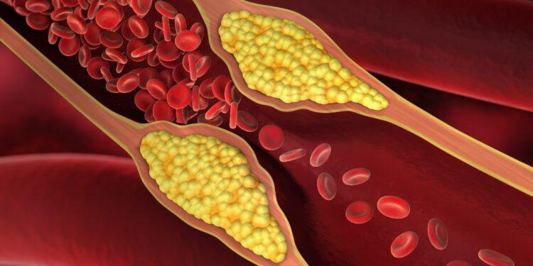 Diagrama de arteriosclerosis.
