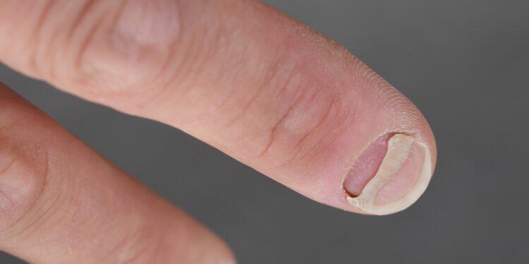 ablösender Fingernagel