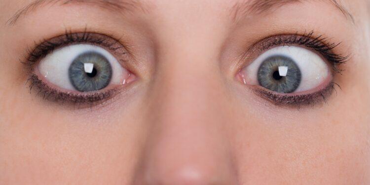 Frau mit schielenden Augen